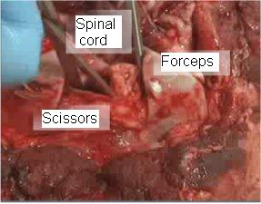 Figure 3 – Severing the attachments to free up the spinal cord.