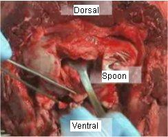 Figure 4 – Head turned – dorsal side up, advancing the collection spoon into the canal for obex removal.