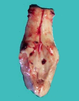 This is an image of the sampled brainstem including obex.  The obex is seen as a V -shaped depression.
