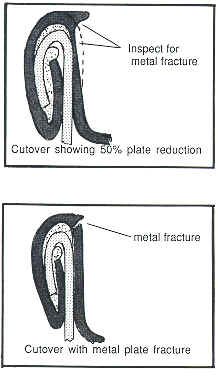 Cutover graphic showing both 50% reduction and a fracture