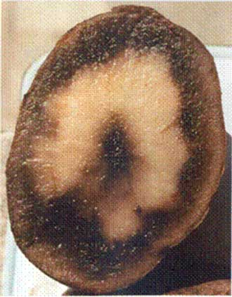 2 | Soft black tissue caused by freezing damage to tuber. Description follows.